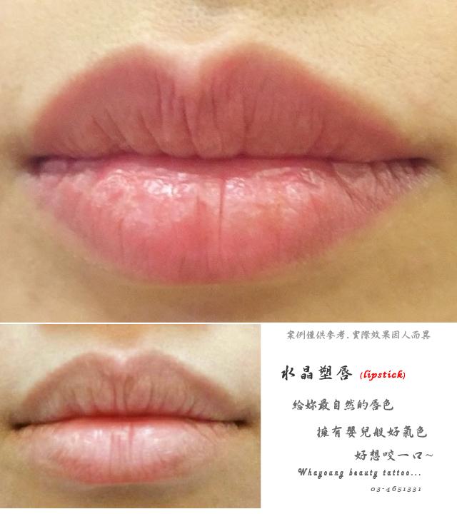 lip101