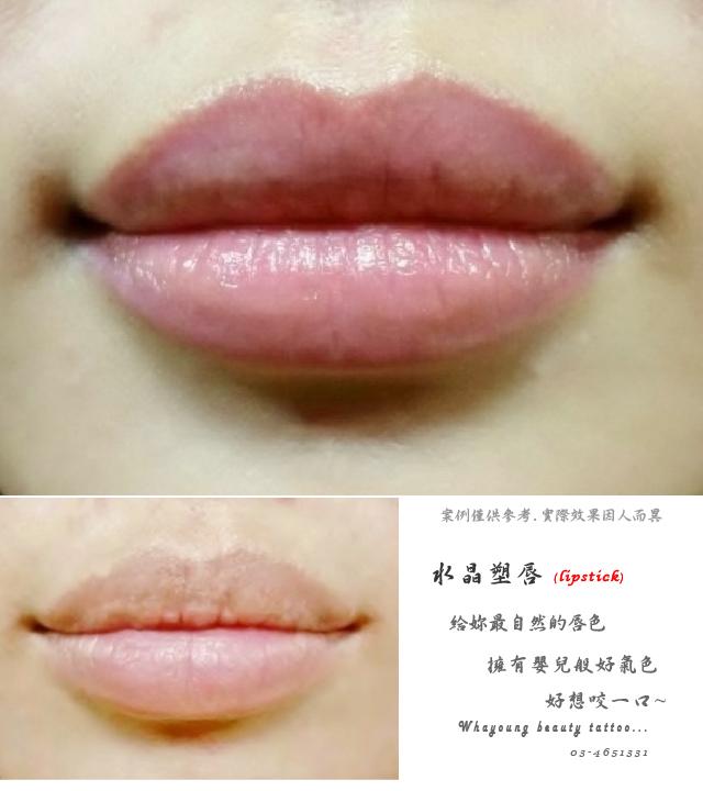 lip102