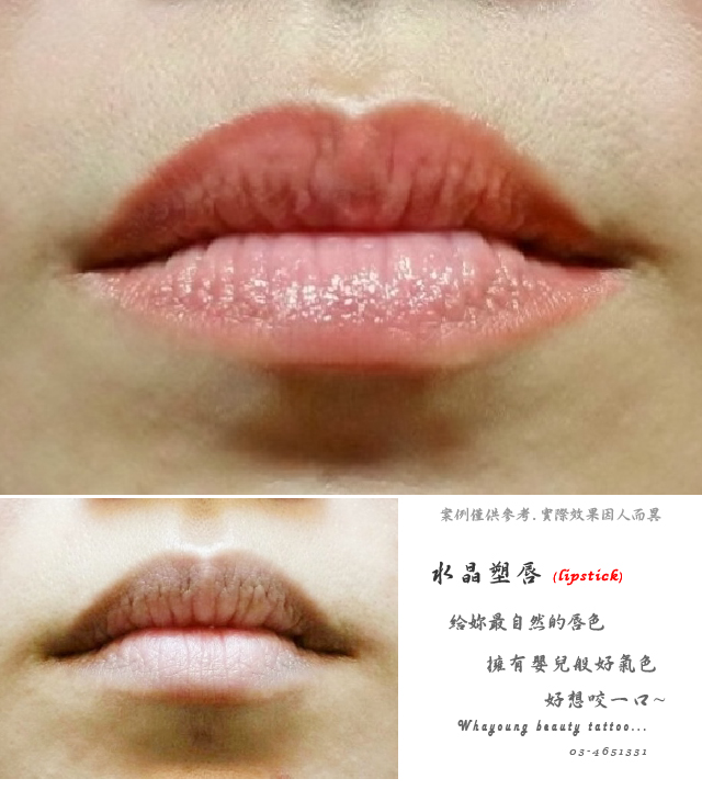lip103