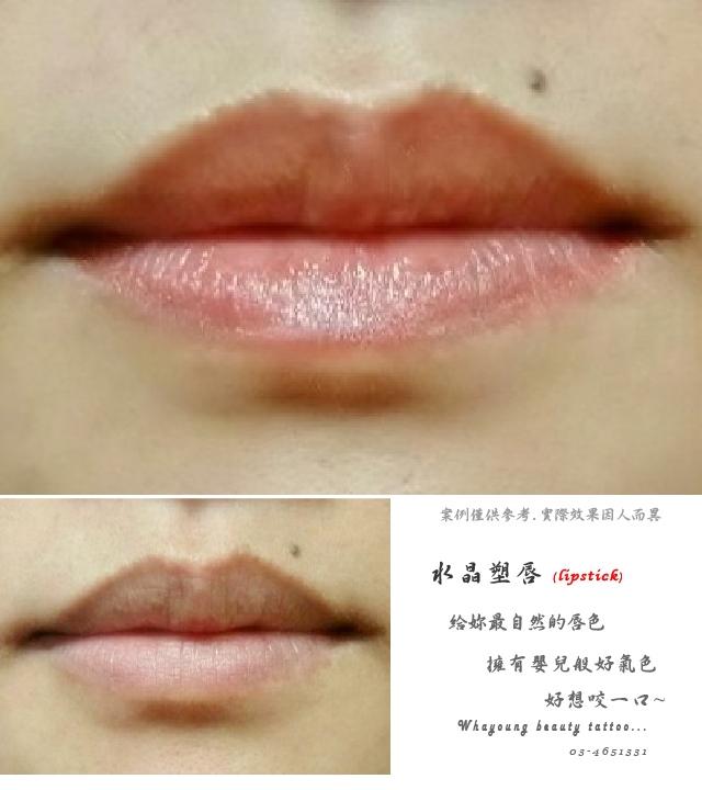 lip104