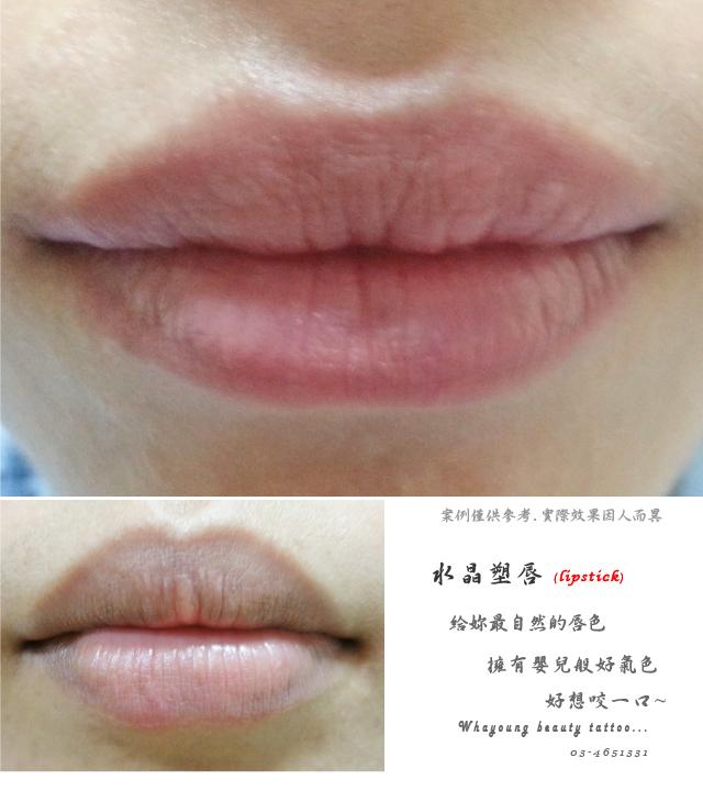lip105