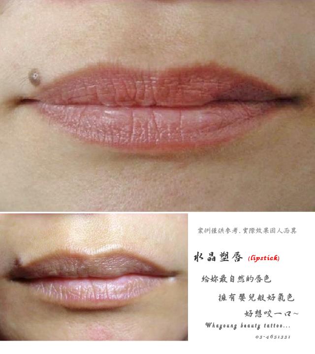 lip106