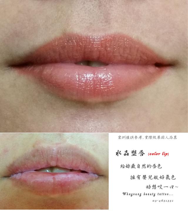 lip107