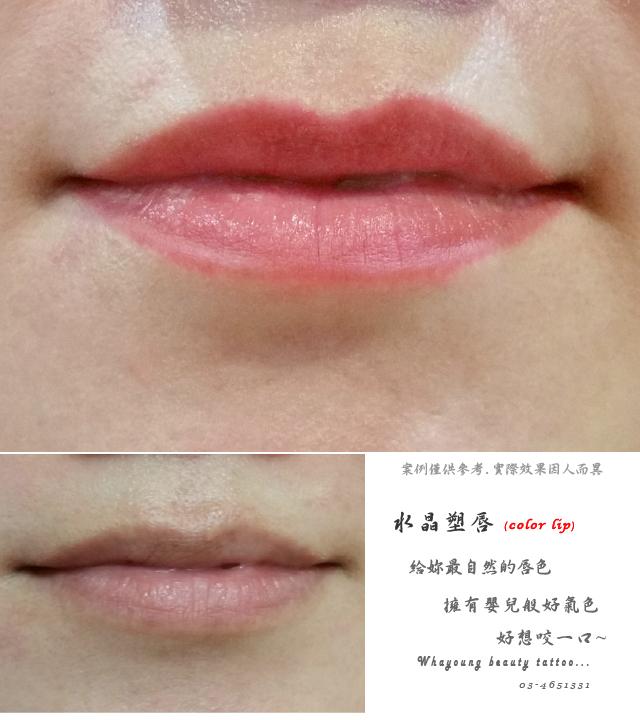 lip108