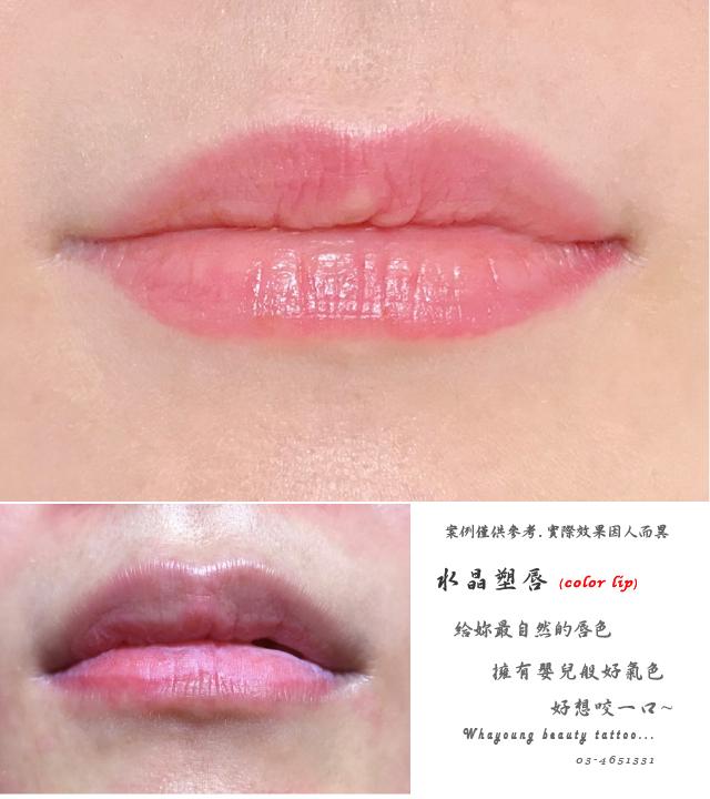 lip112