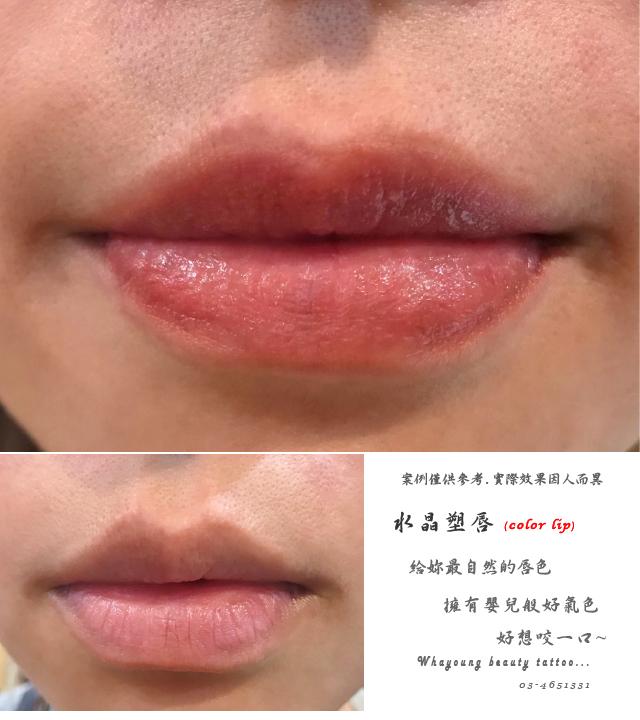 lip114