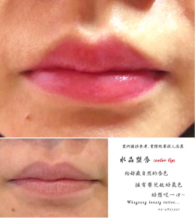 lip115