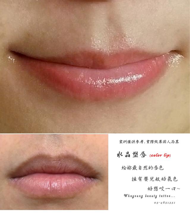 lip117