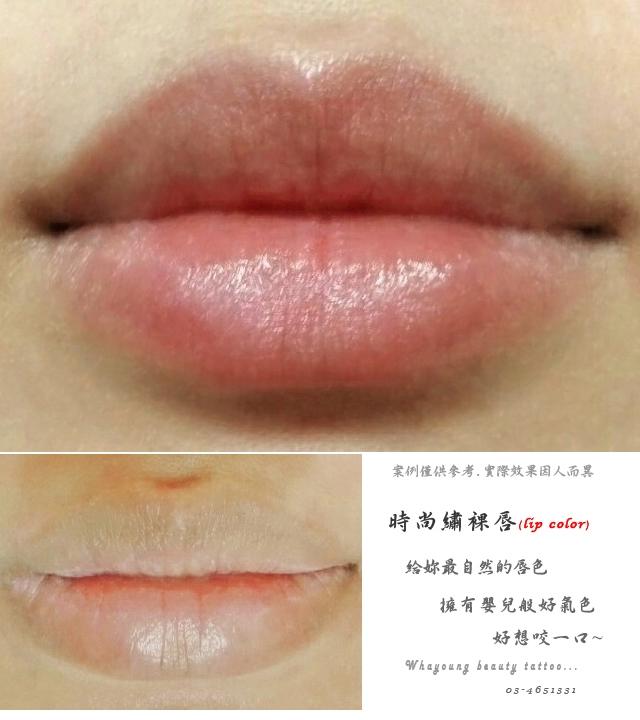 lip201
