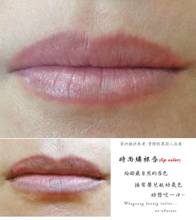 lip202