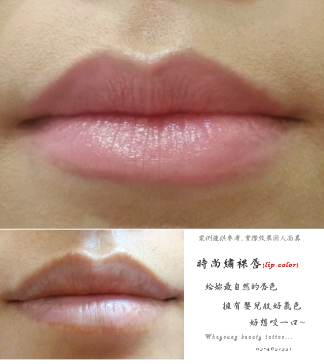 lip204