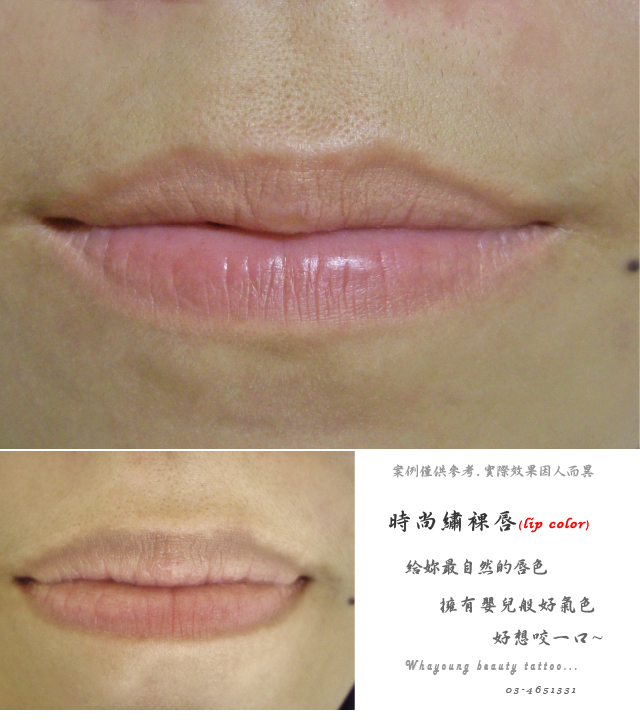 lip205