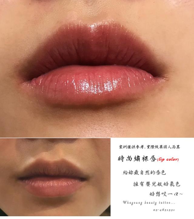 lip206
